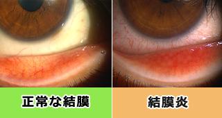 東戸塚 眼科の診療|結膜炎